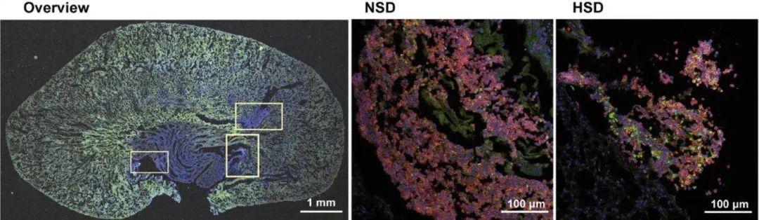 《Science》:吃太咸会降低免疫力!口味重的你需要常备赛立复NADH